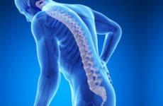 Osteoporosi, una malattia che preoccupa. Convegno ad Acquasanta Terme